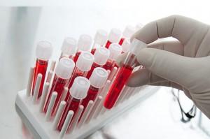 Медики смогут определять грозит ли человеку смерть по анализу крови