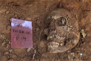 Останки старейшего в мире вставного зуба, относящиеся к 3-му веку до нашей эры, были обнаружены в Западной Европе