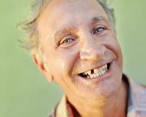 Потеря зубов негативно сказывается на памяти людей преклонного возраста