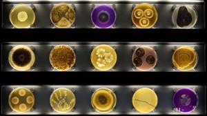 Музей микробов первый в мире открыт в Амстердаме