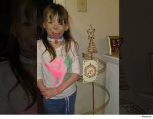 8-летняя девочка, выжившая после страшного пожара, получила подарок от Бейонсе