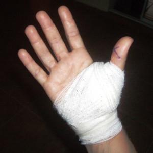 Рубцовск: Гимназист обморозил руку на уроке физкультуры