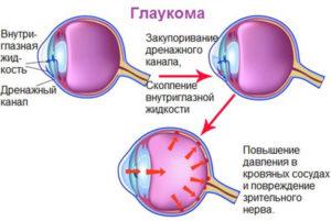 content_glaukoma1_1__econet_ru